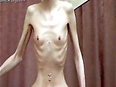 Anoreksiya poz veriyor ile birlikte acayip sıska bir kemik bebeđim